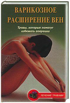 Вера Подколзина, Ольга Абрамович «Варикозное расширение вен. Травы, которые помогут избежать операции»