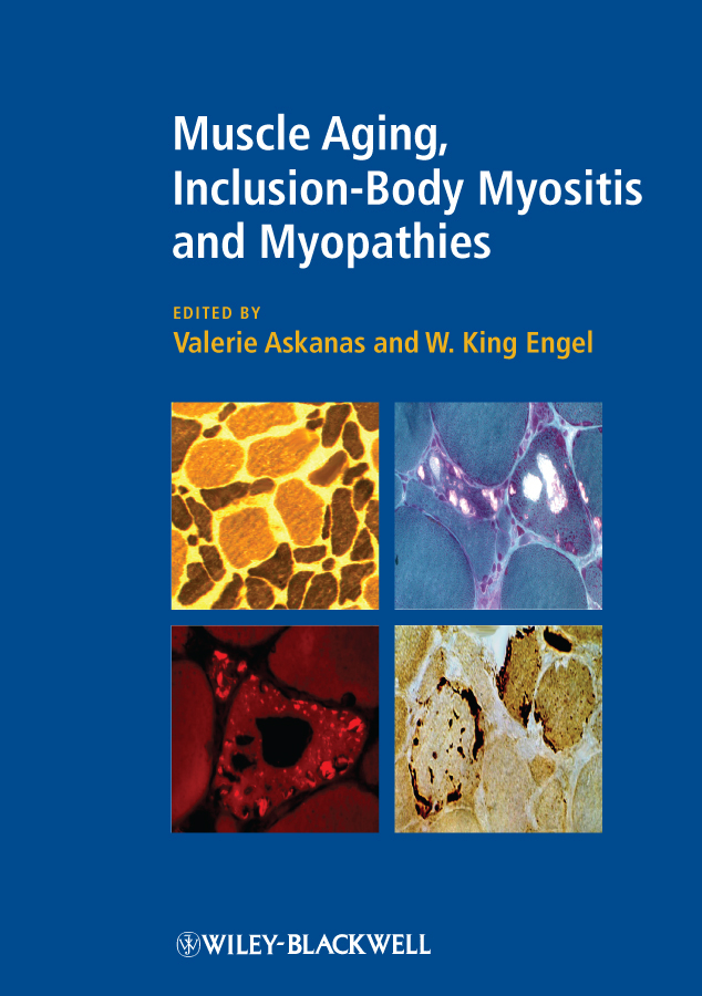 Engel W. King Muscle Aging, Inclusion-Body Myositis and Myopathies moore bret a handbook of clinical psychopharmacology for psychologists isbn 9781118221235