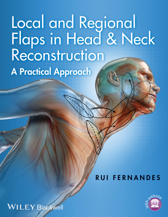 Rui Fernandes Local and Regional Flaps in Head and Neck Reconstruction. A Practical Approach