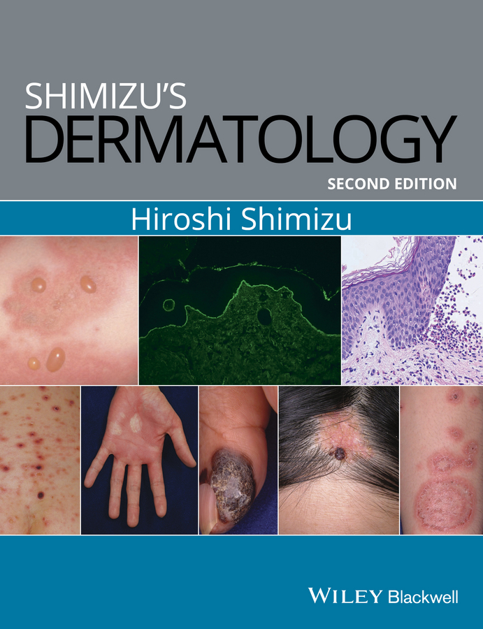 Hiroshi Shimizu Shimizu's Dermatology soutor clinical dermatology