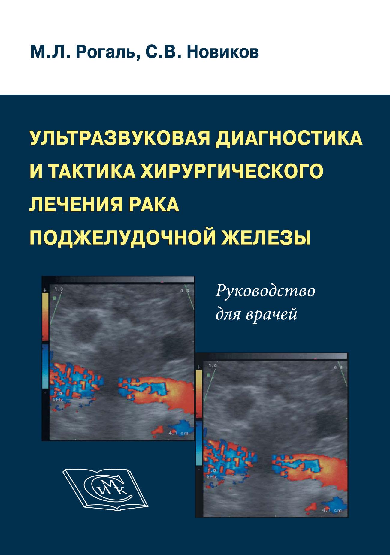 М. Л. Рогаль Ультразвуковая диагностика и тактика хирургического лечения рака поджелудочной железы. Руководство для врачей цена и фото
