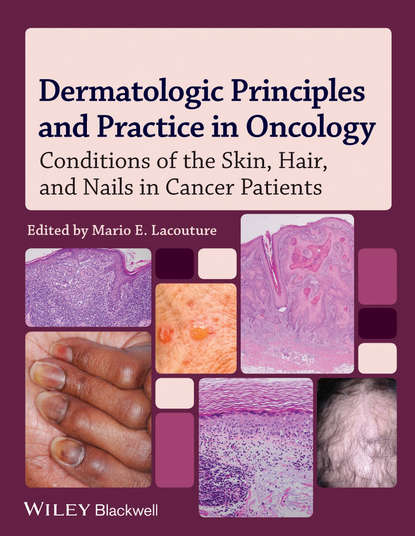 Mario Lacouture E. Dermatologic Principles and Practice in Oncology. Conditions of the Skin, Hair, and Nails in Cancer Patients недорого