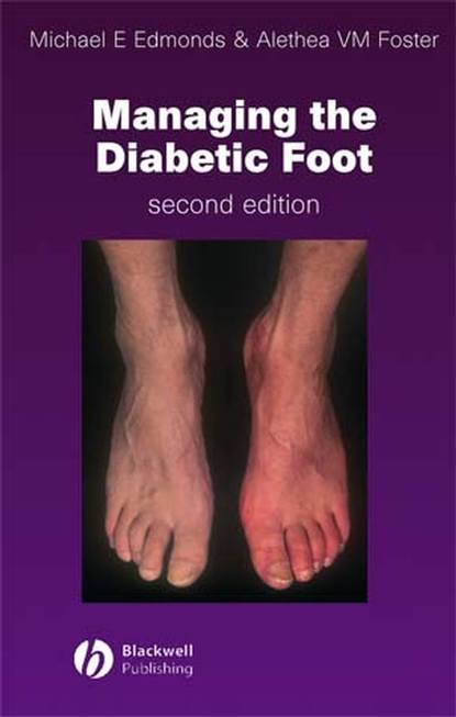Фото - Michael E. Edmonds Managing the Diabetic Foot lee sanders a practical manual of diabetic foot care