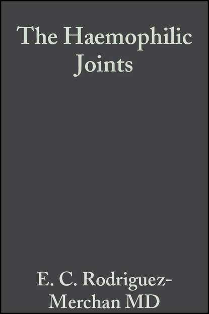 Группа авторов The Haemophilic Joints brian h mullis synopsis of orthopaedic trauma management