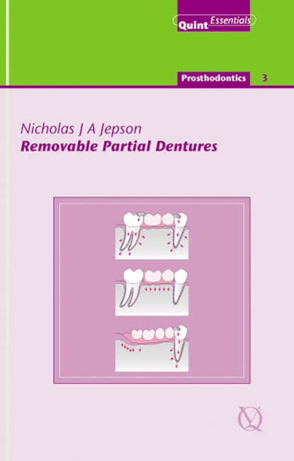 Nicholas J. A. Jepson Removable Partial Dentures donald curtis a journal of prosthodontics on complete and removable dentures